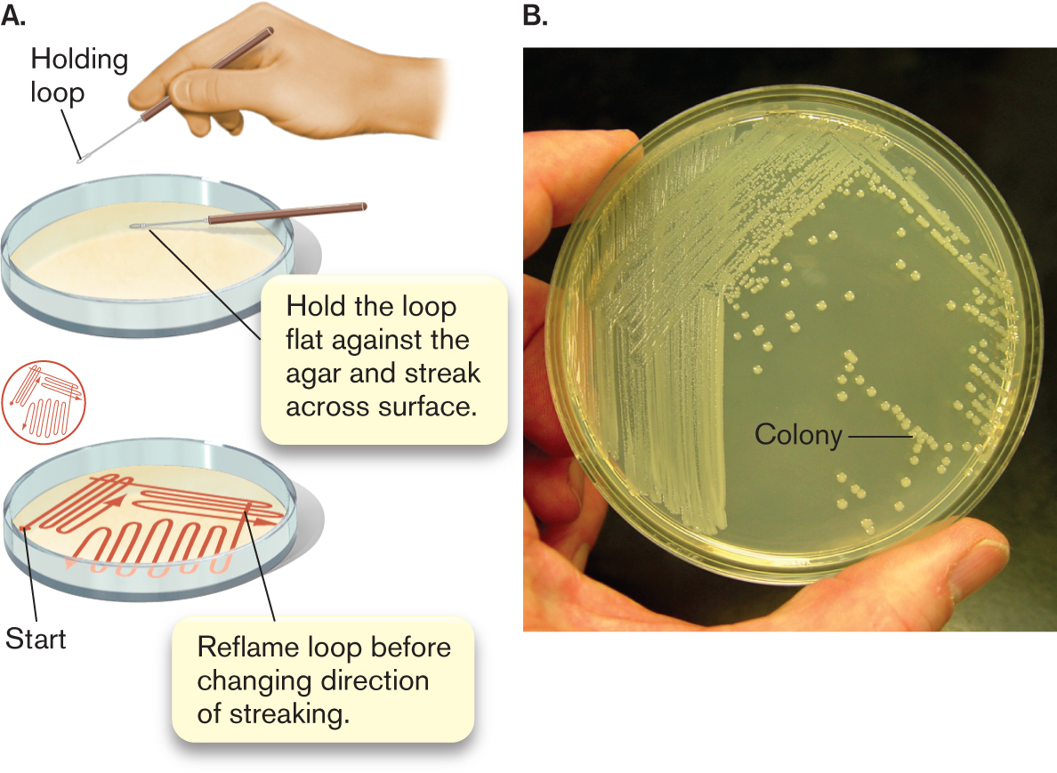 What Is A Pure Culture Of Bacteria