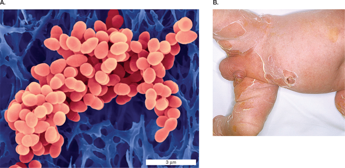 Microbiology 4e figure 263 staphylococcus aureus a s aureus colorized sem b exfoliative toxin from some strains of s aureus causes scalded skin syndrome fandeluxe Images